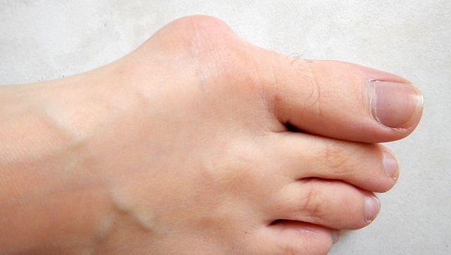 Dolori ai piedi e problemi alla circolazione, attenzione alle scarpe