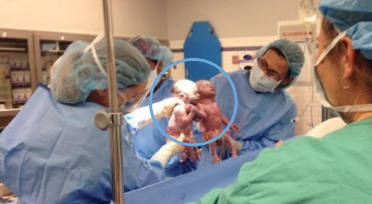 Ces jumelles sont nées en se tenant la main... Les voici deux ans plus tard: adorables!