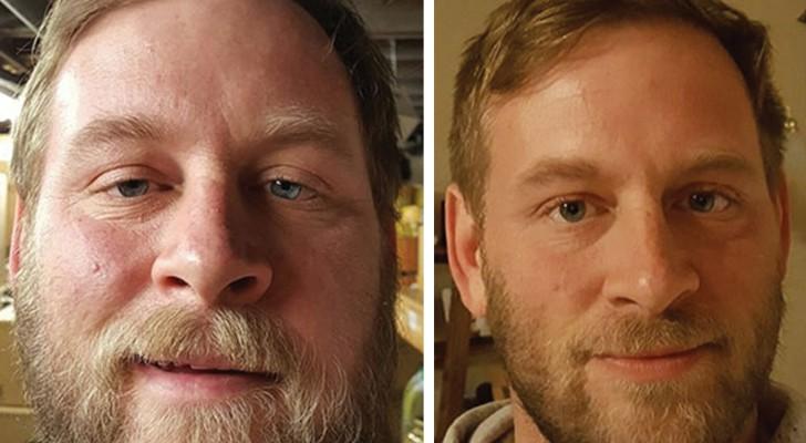 Ils arrêtent de boire de l'alcool et se photographient après des mois:  voilà leur MÉTAMORPHOSE