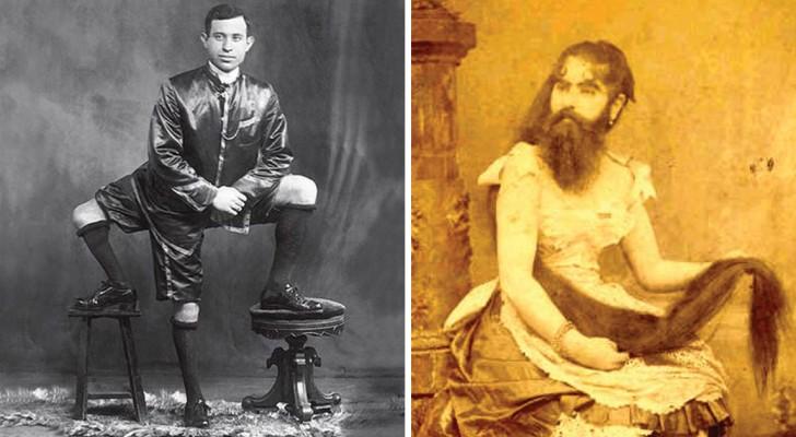 Il circo dei fenomeni da baraccone: ecco i raggelanti spettacoli itineranti di fine Ottocento
