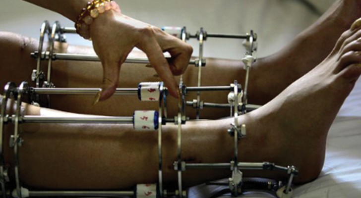 Subir une intervention pour être plus grand: en Inde, une intervention chirurgicale absurde fait fureur auprès des jeunes