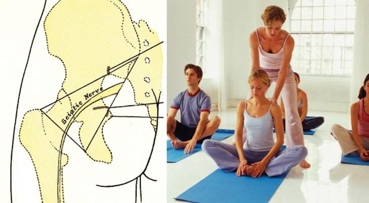 Nervo sciatico: qualche minuto in QUESTA posizione e il dolore sparirà