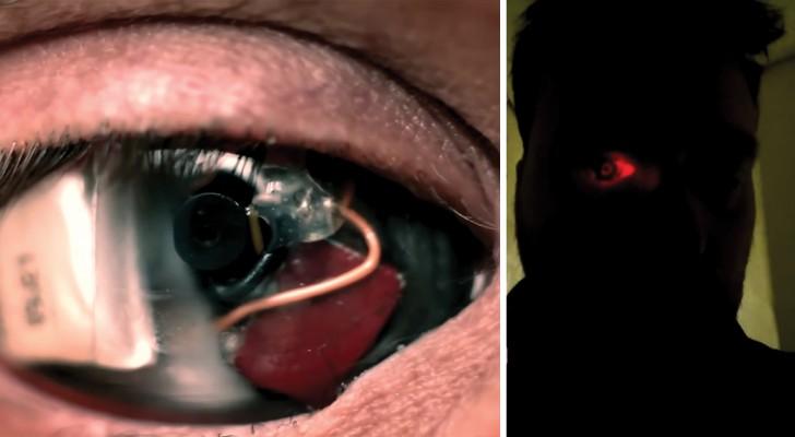 Eyeborg: este homem implantou uma câmera no olho direito!