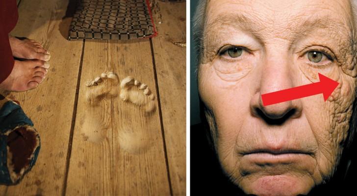 12 affascinanti cicatrici lasciate dal passaggio inesorabile del tempo