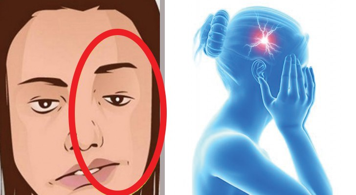 Je lichaam geeft deze 7 signalen af voordat er een beroerte optreedt