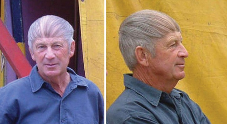12 men who would do well to accept their baldness ... instead of hiding it!