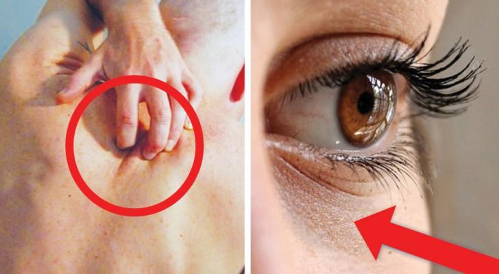 12 segnali che il corpo invia quando il livello di zuccheri nel sangue è troppo alto
