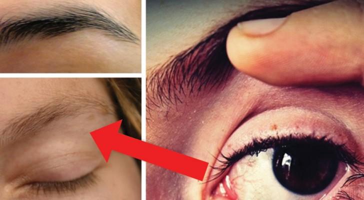 Woher kommt das Zittern am Augenlid, das wir nicht kontrollieren können? Hier sind einige Erklärungen
