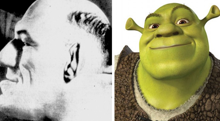 La curiosa e tragica storia dell'uomo affetto da acromegalia, che ha ispirato il personaggio di Shrek