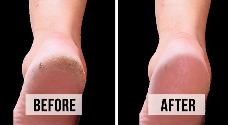 5 rimedi fai da te per sbarazzarsi dei talloni screpolati ed ottenere piedi morbidissimi