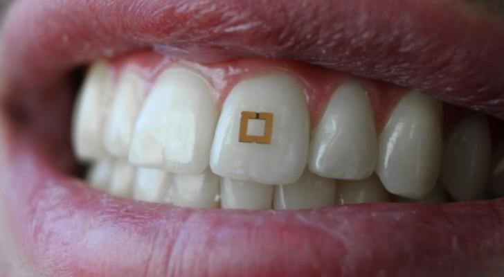 Si attacca ai denti e monitora la tua dieta: ecco il chip che ti dice cosa mangi