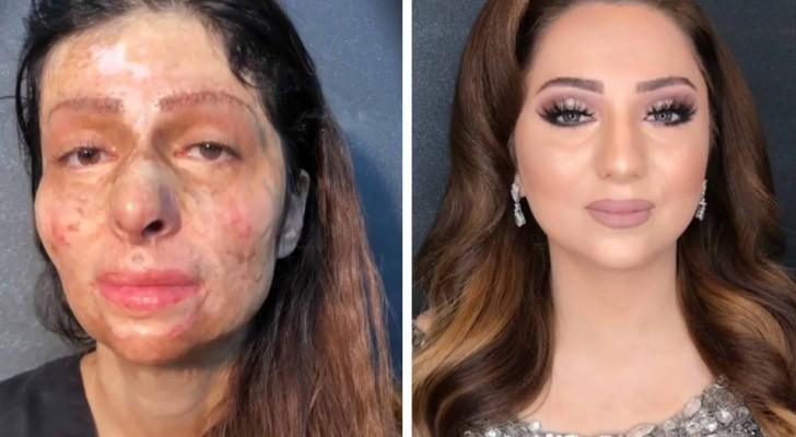 Förvandlingen av dessa kvinnor tack vare smink är slående och hjärtskärande på samma gång