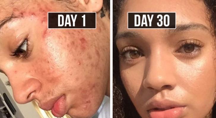 Ze komt in 30 dagen van acne af met natuurlijke methoden: vandaag helpt haar methode duizenden mensen