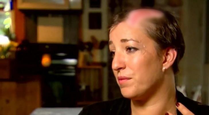 Ela perdeu uma parte dos cabelos em poucos segundos, então quer avisar outras mulheres deste risco muito comum