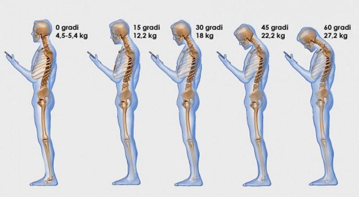 Vous regardez souvent votre téléphone ? Voici ce que vous faites à votre colonne vertébrale