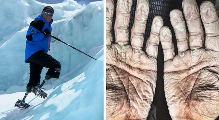 Hoe ontembaar de geesteskracht van de mens is, dat blijkt maar weer uit deze 14 indrukwekkende fotoverhalen