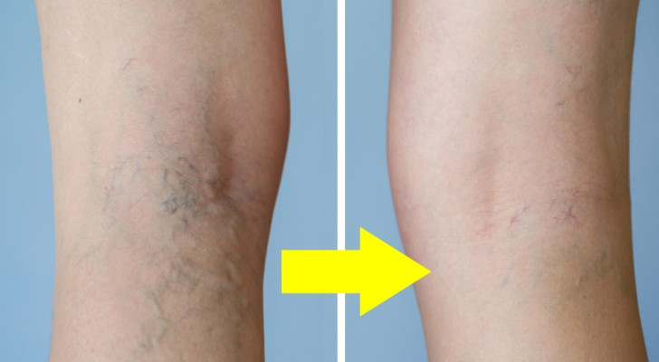 7 ways to reduce varicose veins without using medicines