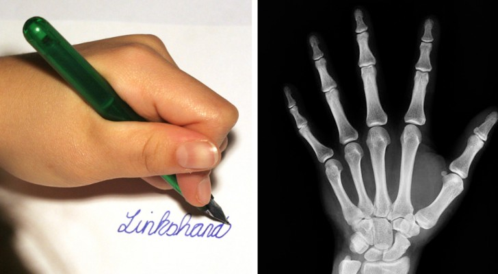 Left-handed people tend to be more intelligent than right-handed people --- a study confirms this