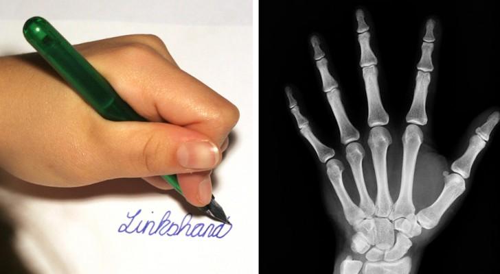 Linkshandige mensen neigen intelligenter te zijn dan rechtshandigen: een onderzoek bevestigt dit