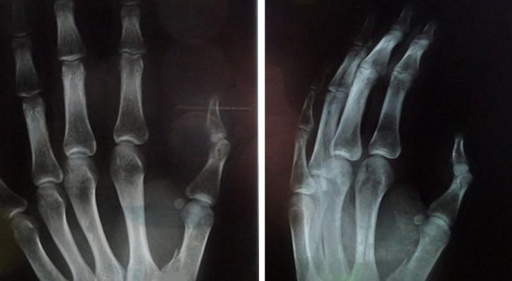 Questo è ciò che succede alle dita della mano quando provi a scrocchiarle