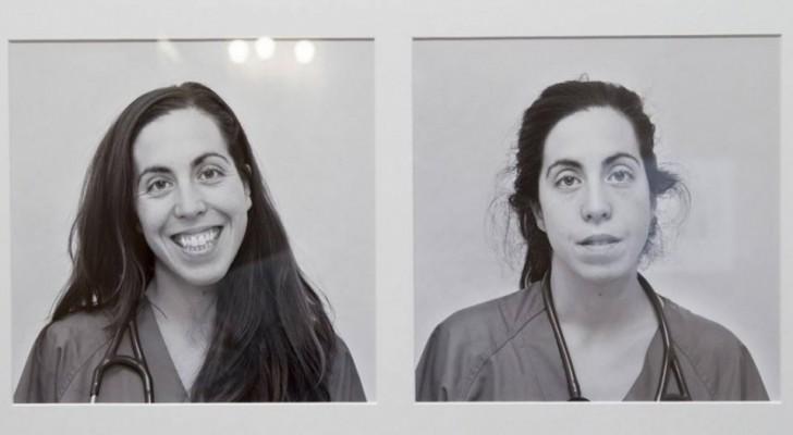 Medici fotografati prima e dopo un turno di 24 ore al pronto soccorso: ecco il vero volto della medicina