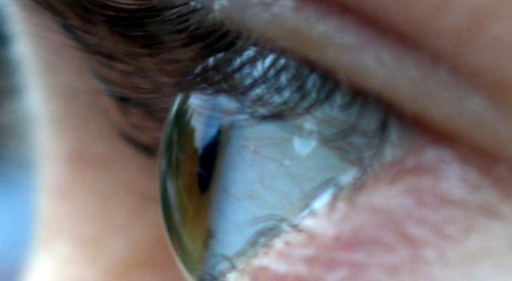 Thérapie génique : 12 patients retrouvent la vue grâce à cette nouvelle frontière médicale