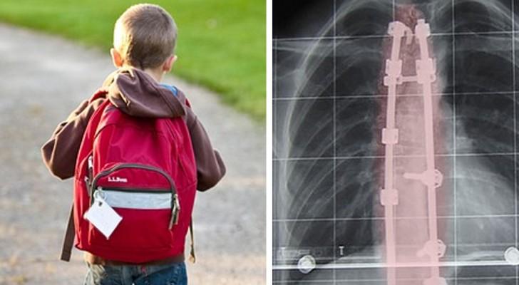 Skolryggsäckarna är för tunga. Vilka är riskerna som detta medför för våra barn? Experterna svarar