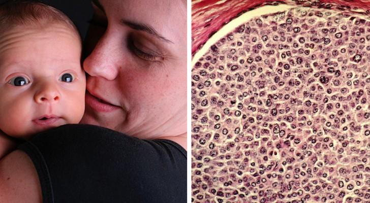 Avere figli porta ad un piccolo, ma significativo, rischio incrementato di sviluppare il tumore al seno