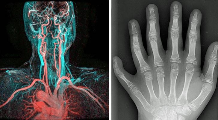 8 unglaubliche Bilder des menschlichen Körpers, die man nicht jeden Tag sieht