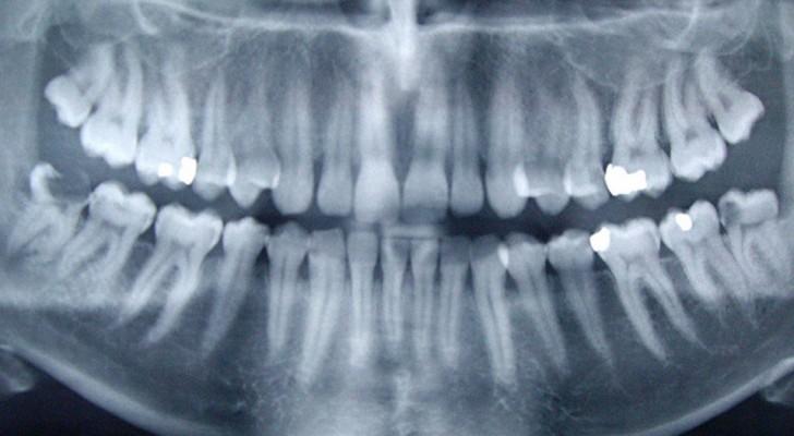 Forscher behaupten, dass die Ursache für Alzheimer im Mund zu finden ist