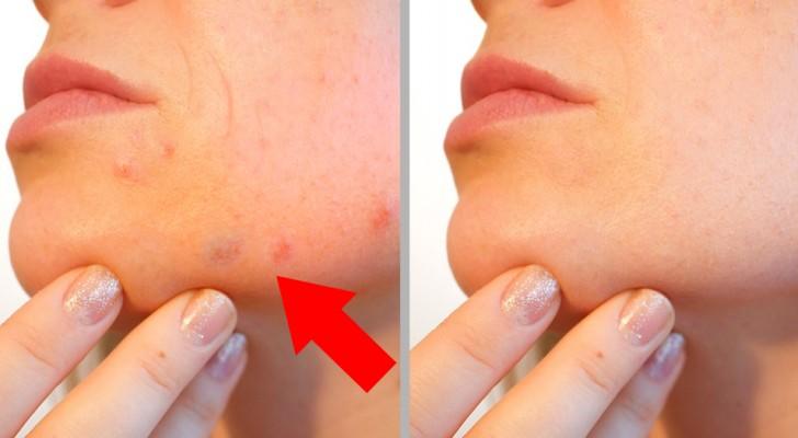 11 alimentos que vão te dar uma pele luminosa em apenas uma semana