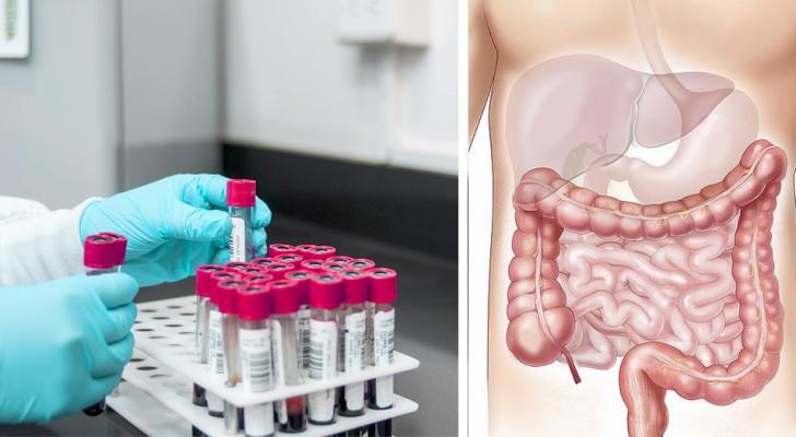 Ein neuer Test ist in der Lage, Tumore 15 Jahre vor dem Beginn mit einem einfachen Bluttest zu identifizieren