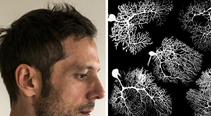 Le cerveau humain continue à produire des neurones même à l'âge adulte : une nouvelle étude relance le débat