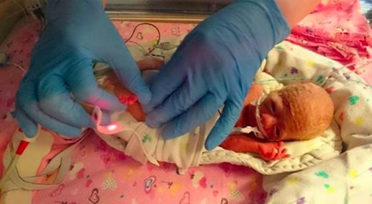 Quando è nata pesava solo 500 grammi: il modo bizzarro in cui i medici l'hanno salvata ha fatto il giro del mondo