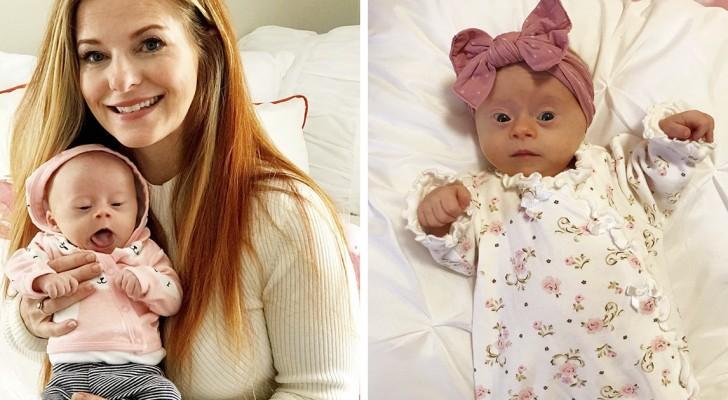 """Een moeder publiceert de """"recensies"""" over haar dochter met het syndroom van Down, en haar woorden ontroeren de wereld"""