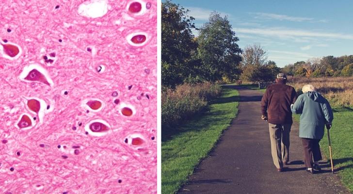 """Onderzoekers ontdekken het """"lontje"""" dat de ziekte van Alzheimer doet ontbranden en de vernietiging van neuronen versnelt"""