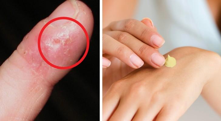 Fini les crèmes et traitements onéreux : voici un remède pour préserver vos mains... avec seulement 2 ingrédients