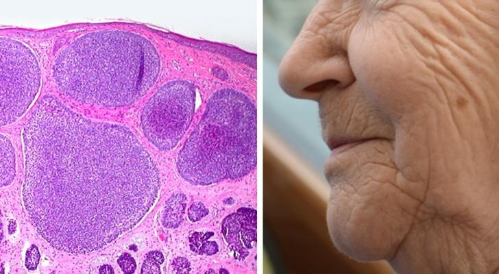 Le médicament anti-âge qui élimine les vieilles cellules passe le premier test humain haut la main