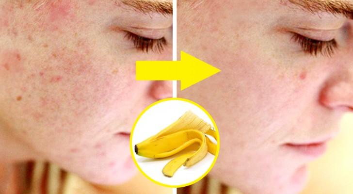Todos los beneficios de la cáscara de banana, que seguramente no conocías