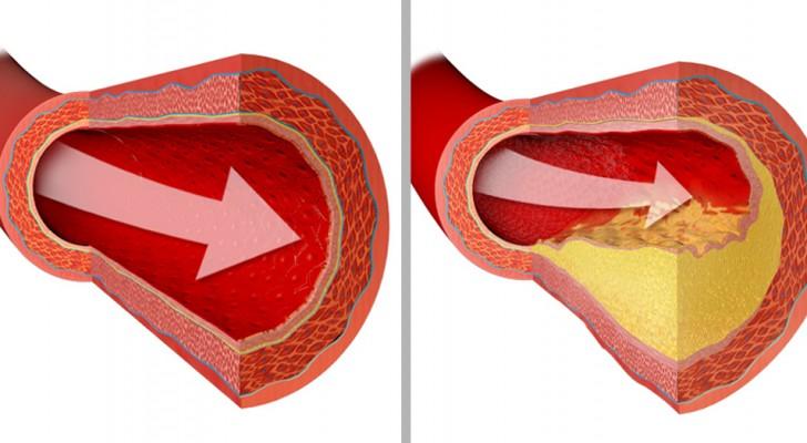 Wil je je hart gezond houden? Hier zijn 9 voedingsmiddelen waar je zonder zou moeten doen
