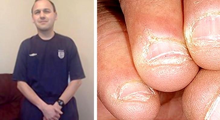 Roer as unhas pode ser muito perigoso: a triste história deste homem nos mostra o porquê