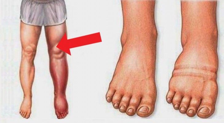 6 bad habits that cause water retention, and how this disorder can be successfully treated!