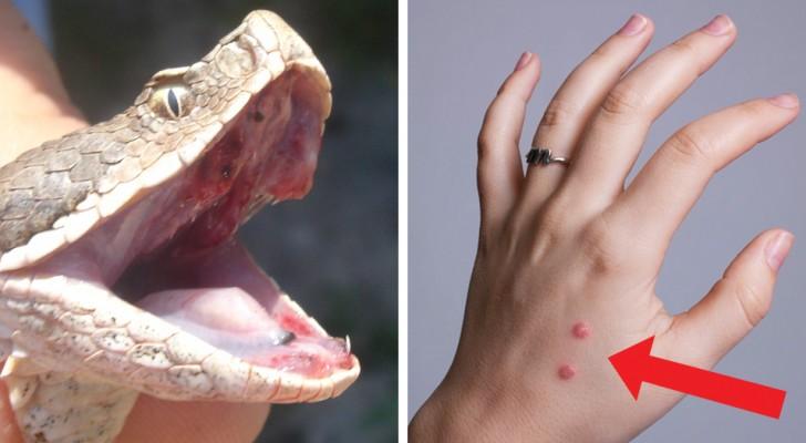 Todos os perigos da mordida de cobra: veja o que fazer... e o que NÃO fazer absolutamente