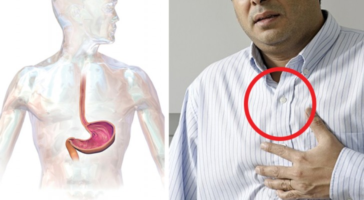 Gastroesophageal reflux (GERD) and everything you need to know to keep it under control
