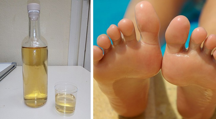 Vinegar is a precious ally for the well-being of our feet and here are all the ways to use it!