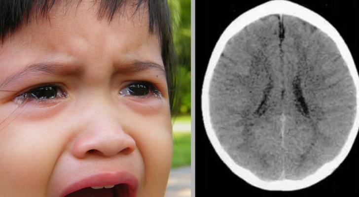 I traumi infantili limitano la crescita del cervello e lo sviluppo dei bambini: la scienza lo conferma