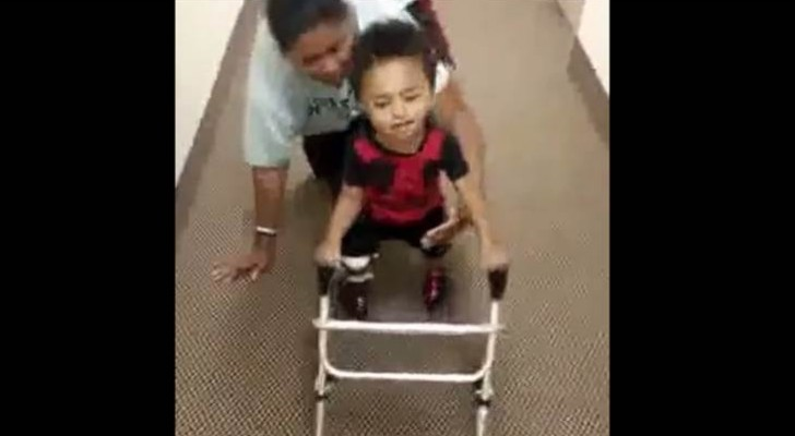 2 year old child with amputated legs learns to walk inspiring the whole world