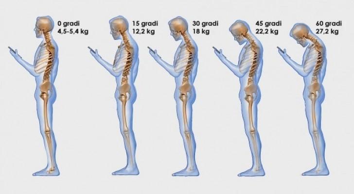 Guardare troppo il cellulare impone uno stress pesantissimo alla colonna vertebrale