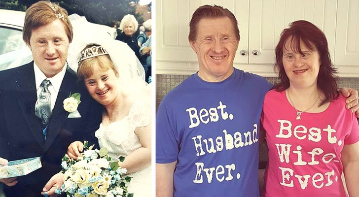 This Down couple married for 28 years proves that love knows no boundaries