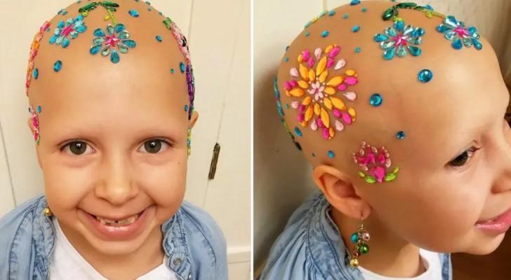 Questa bimba affetta da alopecia partecipa alla gara di acconciature stravaganti e vince il primo premio